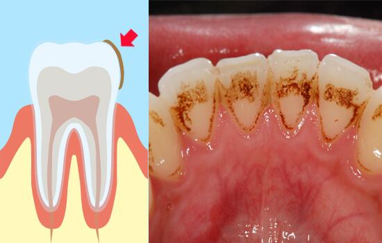 治す 歯 の 黄ばみ