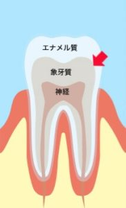 """<span class=""""title"""">白い歯になりたい!どうしたら白い歯になれるのか気になりませんか? ホワイトニングの仕組みについて。。。</span>"""